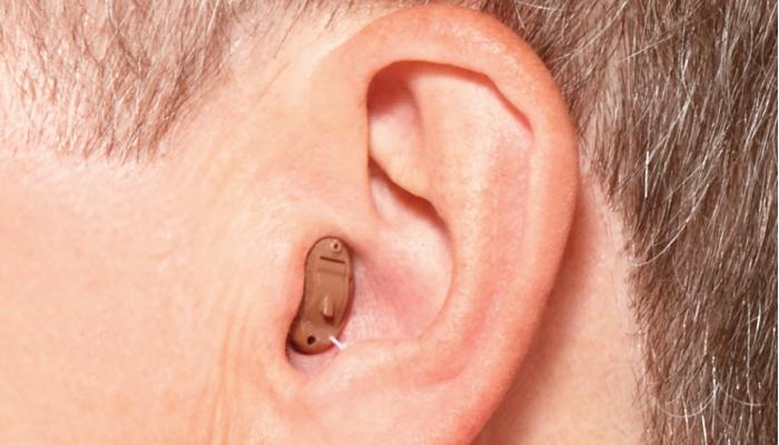 Starkey: ImOhr-Hörgerät im Ohr