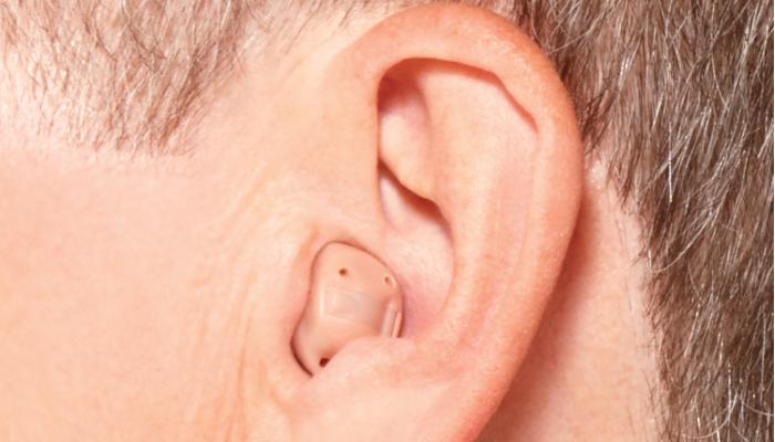 Starkey: Im-Ohr-Gerät im Ohr