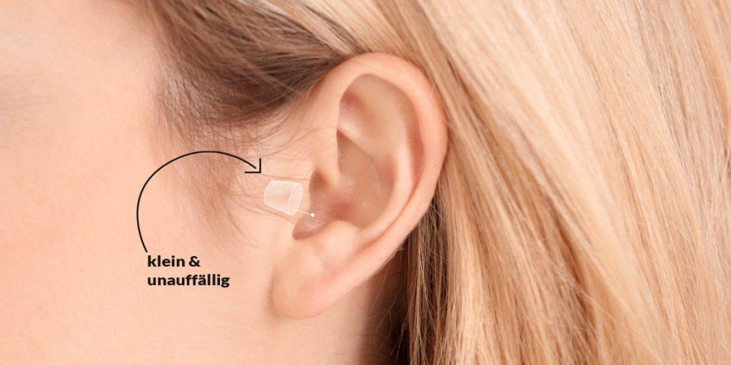 Im-Ohr-Hörgeräte: Schematisches Bild, Skizze