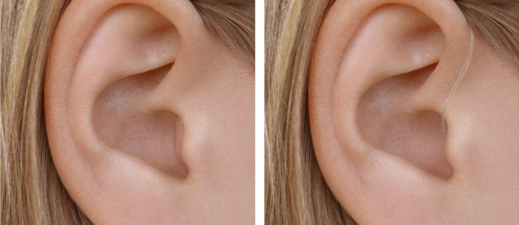 Zwei Ohren mit Widex Moment Hörgeräten: Links CIC, rechts RIC